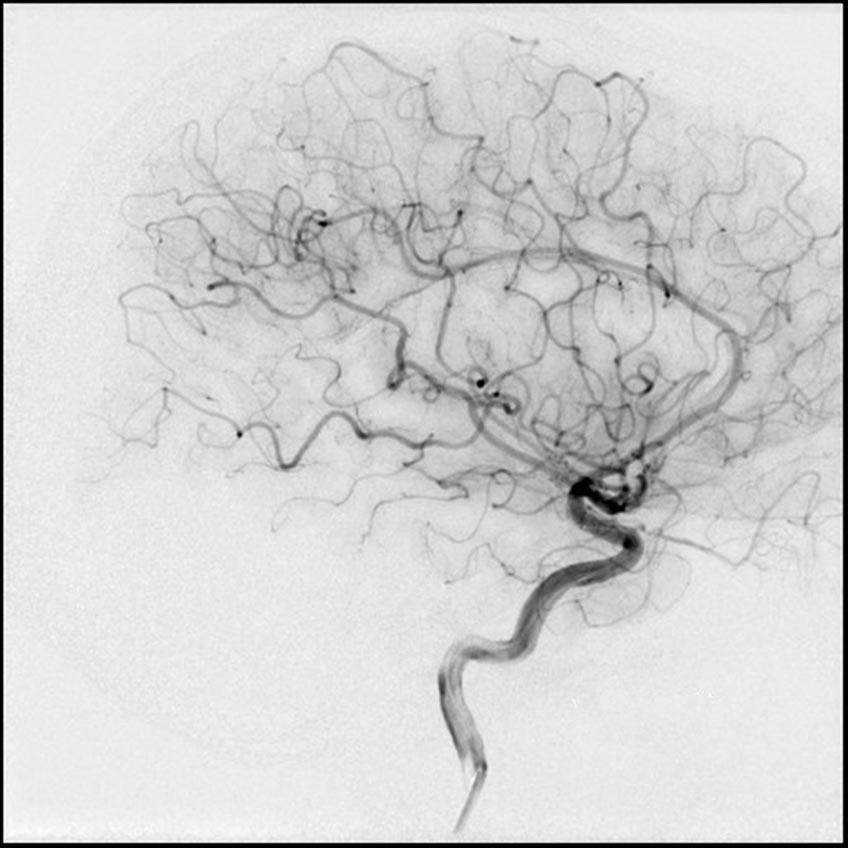 So sieht ein Bild aus einer herkömmlichen Angiografie-Anlage aus.